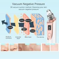 Blackhead Remover Vacuum for Pore Cleaning