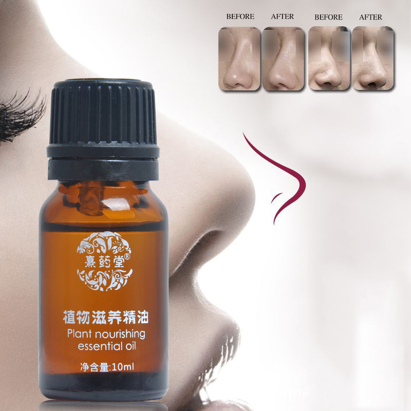 US Nose Essential Thin Nose Narrow Essential Oil Nose Up Heighten Rhinoplasty Nasal Bone Remodeling Natural Care Nosal Bone