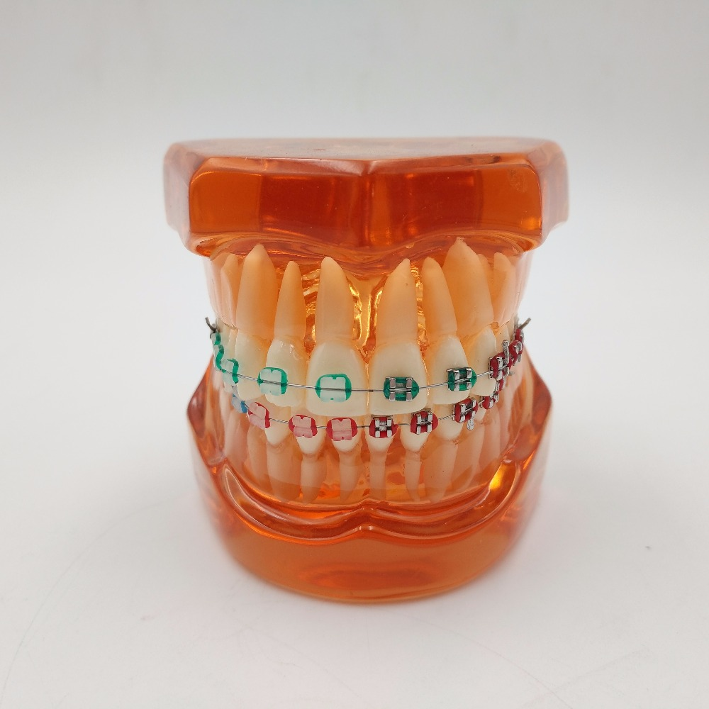 New Teeth model With metal & ceramic brackets Irregular tooth Ortho Metal dentist patient student learning model DEASIN 2018 soarday children primary teeth alternating transparent model dental root clearly displayed dentist patient communication