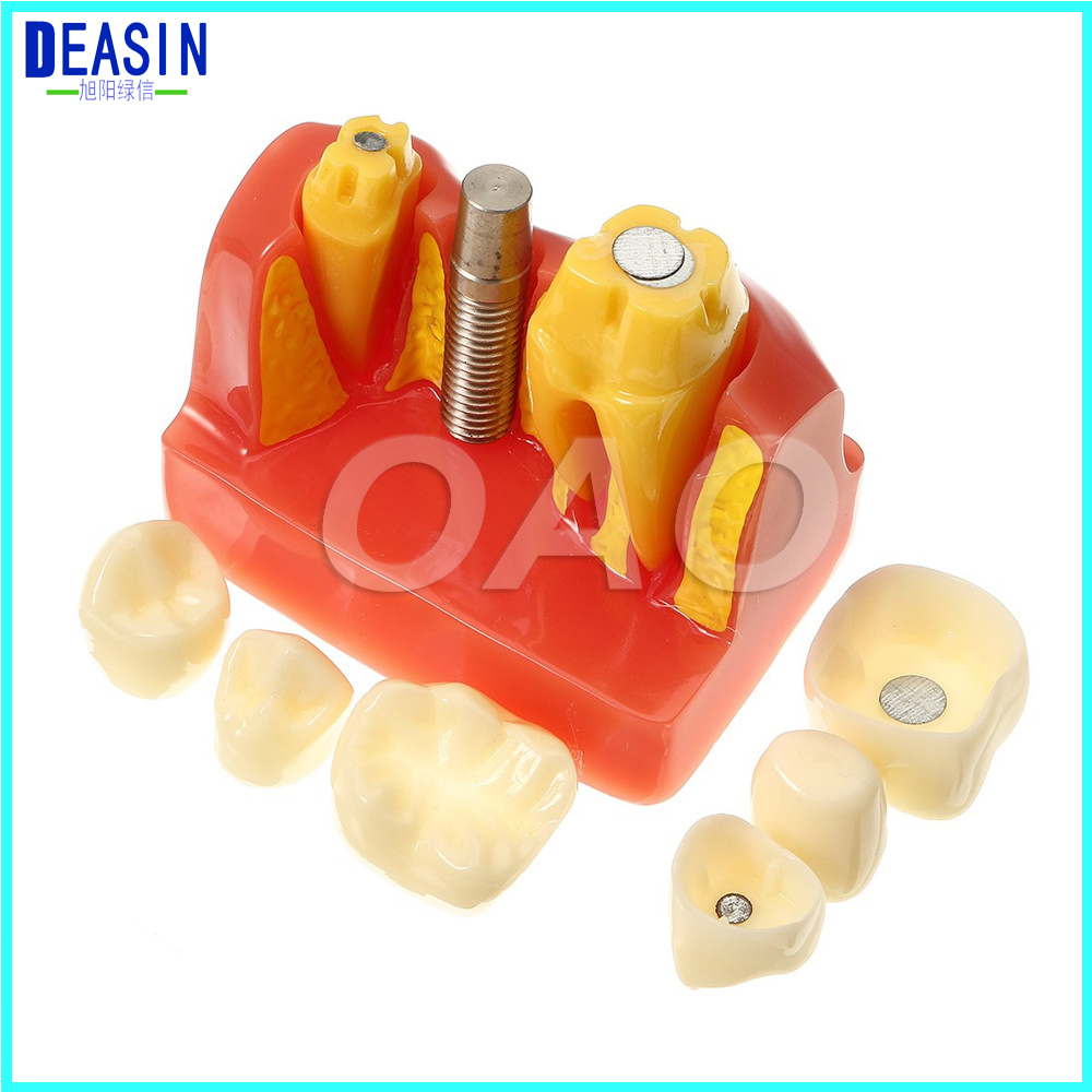 CROWN BRIDGE DEMOSTRATATION TEETH TOOH TYPODONT DENTOFORM MACRO IMPLANT TEETH MODEL 2016 dental orthodontics typodont teeth model half metal half ceramic brace typodont with arch wire
