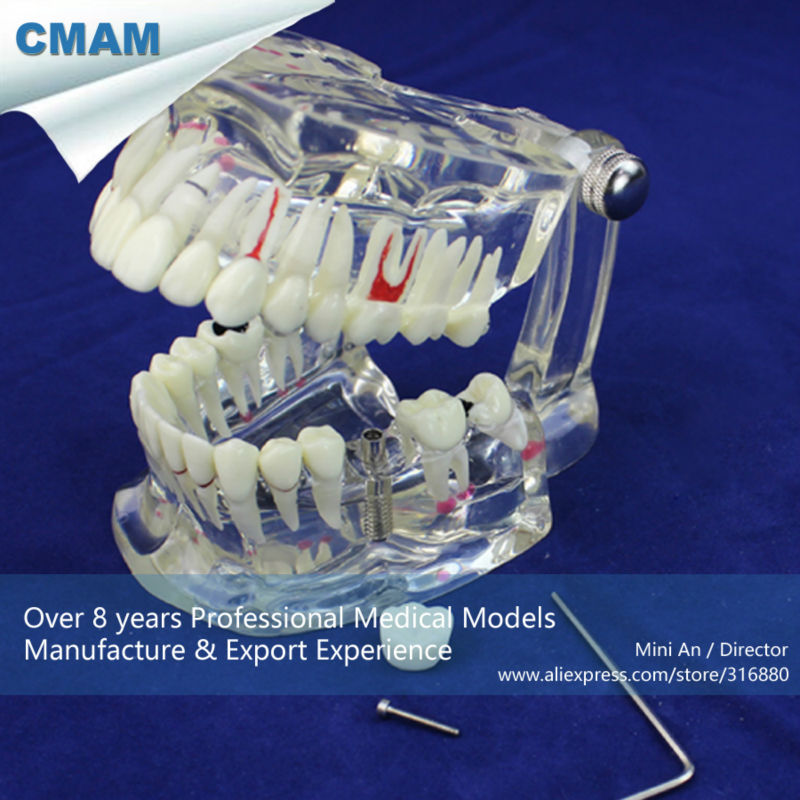 CMAM-DENTAL08 Transparent Dental Implant Disease Teeth Model Restoration attachments retaining implant overdentures