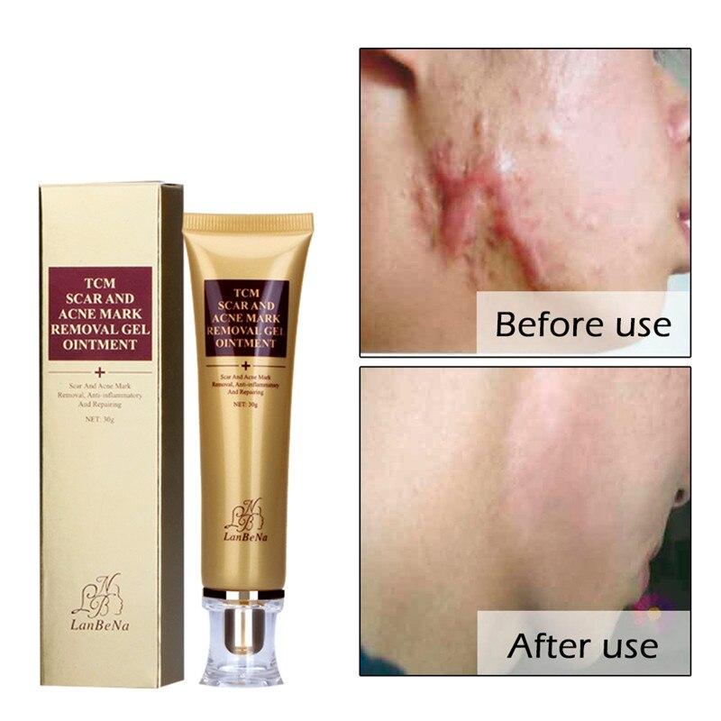 2018 Vente Chaude PRO Acné déplacement de Cicatrice Crème Strentch Marque Acné Cicatrice Remover Traitement de L'acné Rétrécir Les Pores Gel