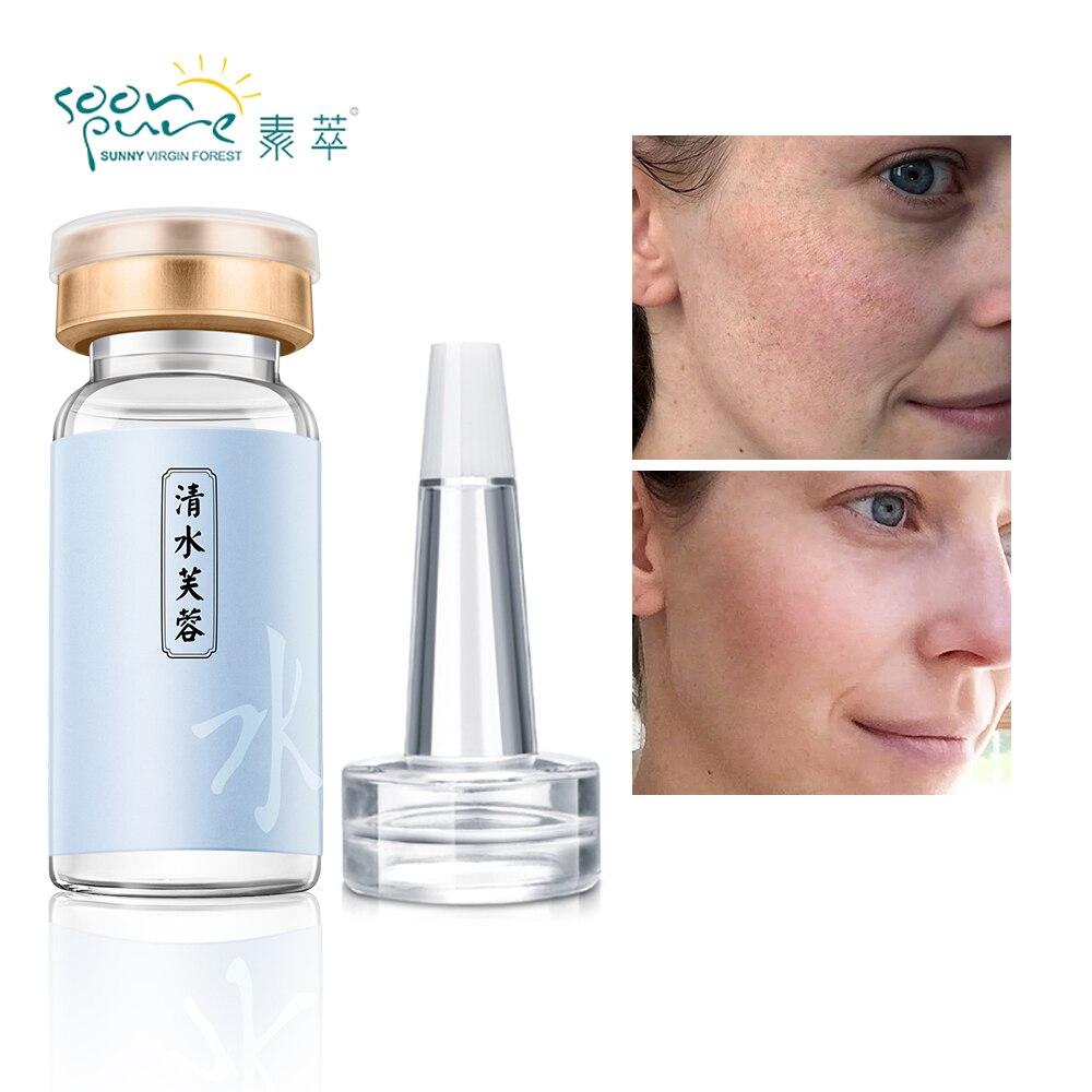 SOONPURE Hyaluronic Acid Serum Moisturizing Repair Essence Whitening Acne Treatment Face Care Anti-Winkle Lift Firming Skin Care