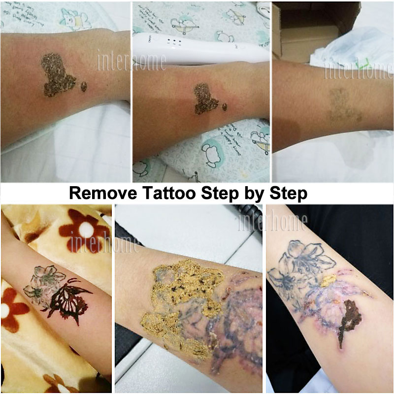 100 newskin tattoo removal tattoo reviews our for Best tattoo removal los angeles