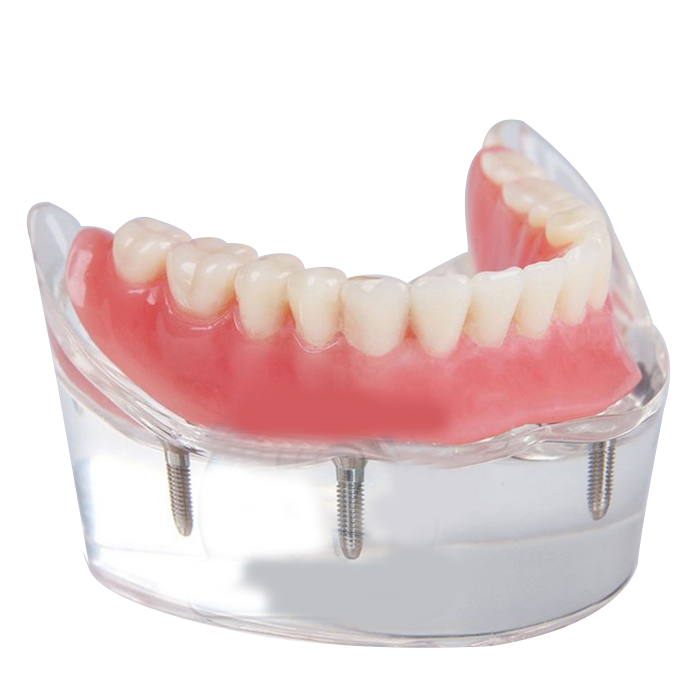 Dental Teeth Model Overdenture Inferior with 4 Implants Demo soarday dental restoration model with 4 implants overdenture inferior teaching study teeth model