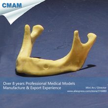 CMAM-IMPLANT03 Toothless Mandible Jaw Model Implant Practice Training,  Medical Science Educational Teaching Anatomical Models