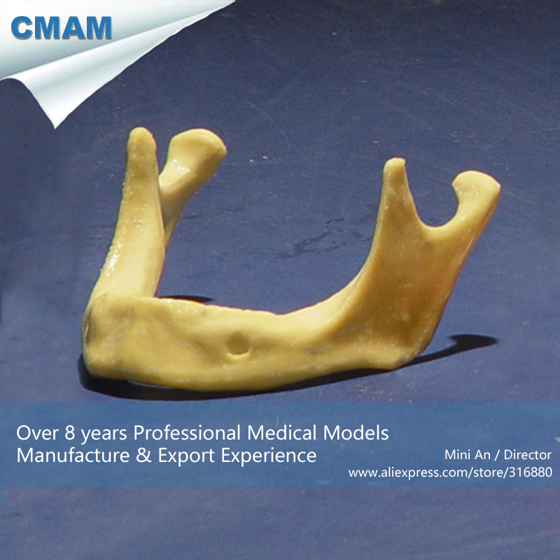 CMAM-IMPLANT03 Wholesale Toothless Mandible Jaw Model Implant Practice Training, Medical Educational Teaching Anatomical Models attachments retaining implant overdentures