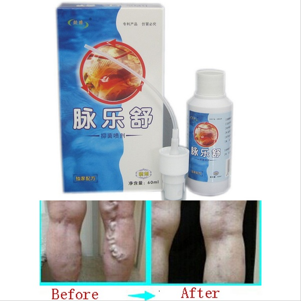 Health Care Relaxation Varicose Veins Treatment Spray Varicose Veins Spray Acid Bilge Itching Lumps Old Bad Leg Vasculitis Cream