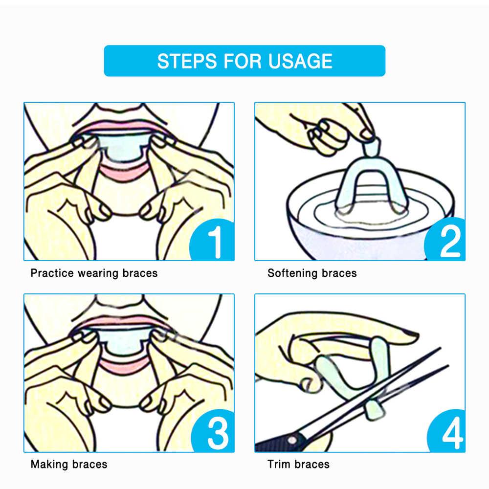 OSHIONER 2 CHIẾC EVA Nhựa Nhiệt Dẻo Làm Trắng Răng Bao Chăm Sóc Răng Tẩy Trắng Răng Chất Làm Trắng Miệng Vệ Sinh Răng Miệng Khay