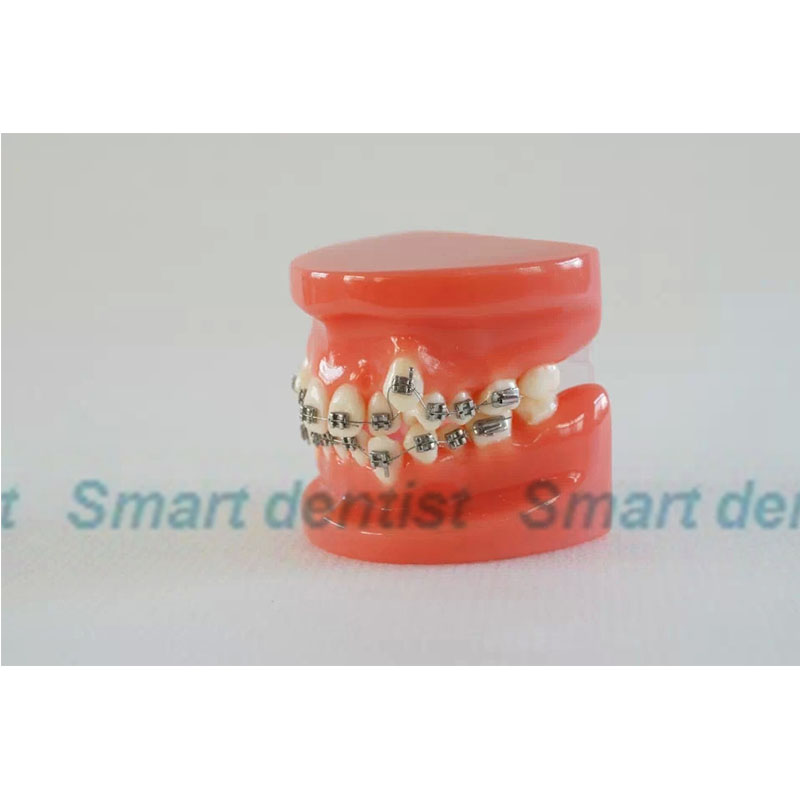 2016 teeth Orthodontic Model Bracket arch wire with wax dental model tooth model with metal brace orthodontic teeth model with metal bracket education teeth model m3001 orthodontic practice model pink transparent tooth model