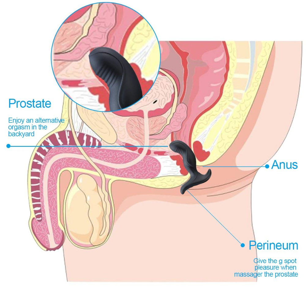 Removed prostate — photo 2