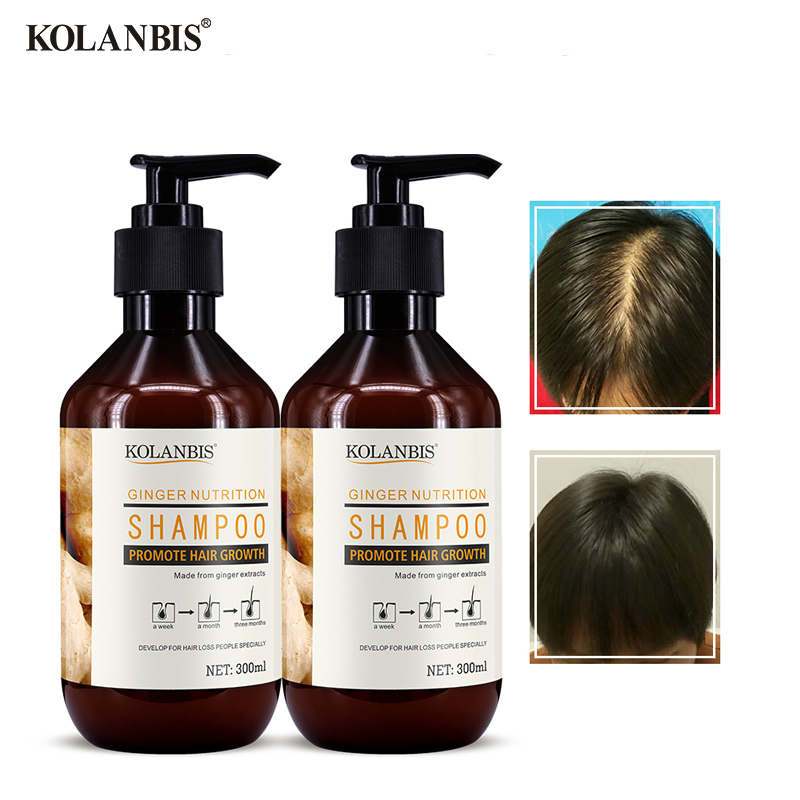 2 Bottles Ginger Shampoo Thinning Hair Strengthen Treatment Thick Fast Growth Anti Dandruff Natural Oily Care Anti Loss Product image