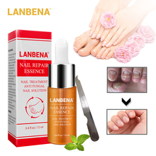 LANBENA Nail Foot Protector Skin Care Essence Serum Removal Fungus Healthy Repair Treatment Tools 15