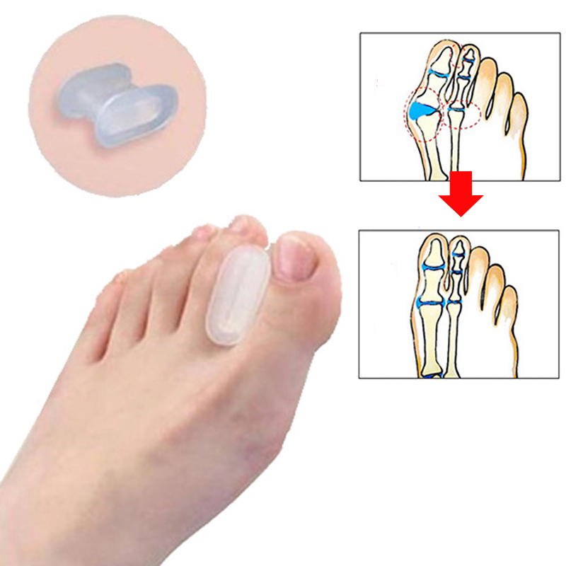1Pair Bone Thumb Valgus Protector Silikonfot Finger Toe Separator Bunion Adjuster Hallux Valgus Corrector Pedicure Feet Care