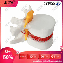 Human anatomy skeleton Spine Lumbar Disc Herniation Teaching Model medical instrume traumatic pistol spinal bone pathology model 200pcs human pathology slides