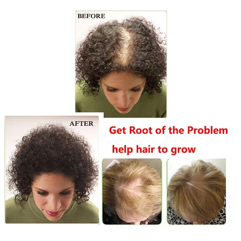 Anti-loss hårschampo för hårtillväxt och förhindrar för tidigt - Hårvård och styling - Foto 3