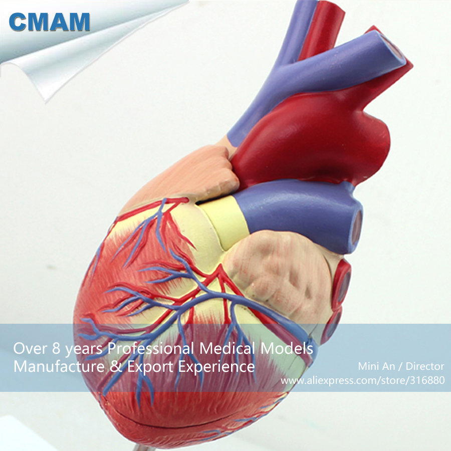 12481 Cmam Heart05 Thrombosis Cross Section Human Heart Model On