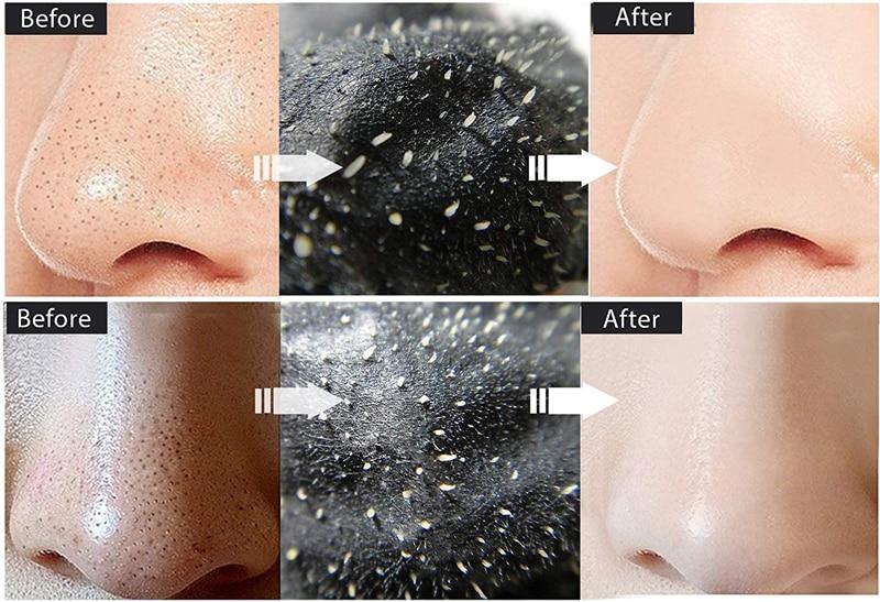 EFERO Black Head Remover Peel Off Mask 8
