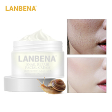 LANBENA Snail Cream Whitening Face Cream Anti Wrinkle Anti Aging Acne Treatment Moisturizing Firming 30g Skin Repair Daily Care цены онлайн