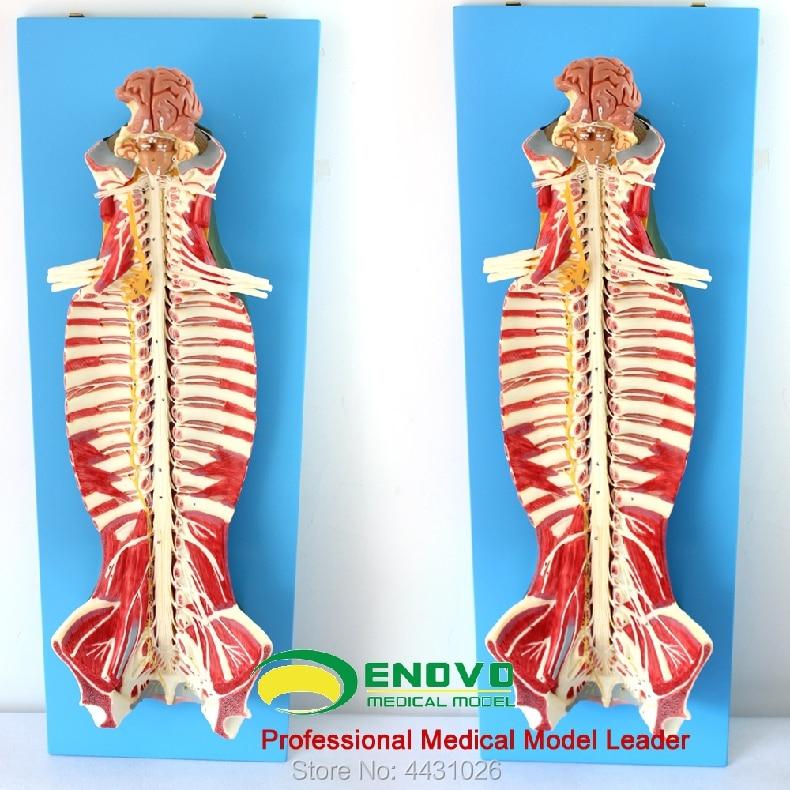 Anatomie d'enovo du nerf rachidien de la moelle épinière