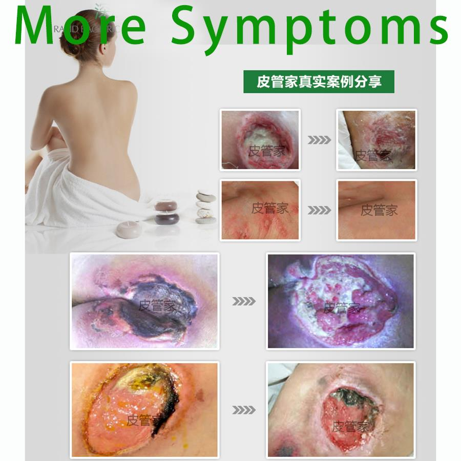 table intervention sores summary strategies differences fullarticle strategiesa comparative effectiveness appendix systematic bed evidence aim treatment ulcer review pressure of