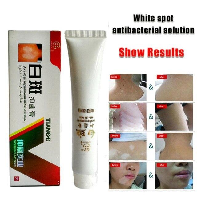Crema médica china para las enfermedades del punto blanco, pigmento de melanina que promueve la piel linimenta, tratamiento de la enfermedad de Vitiligo Leukoplakia 30g