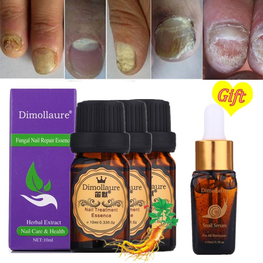 2 Packs Paronychia Onychomycosis Toe Nail Fungus Atural Herbal Cream