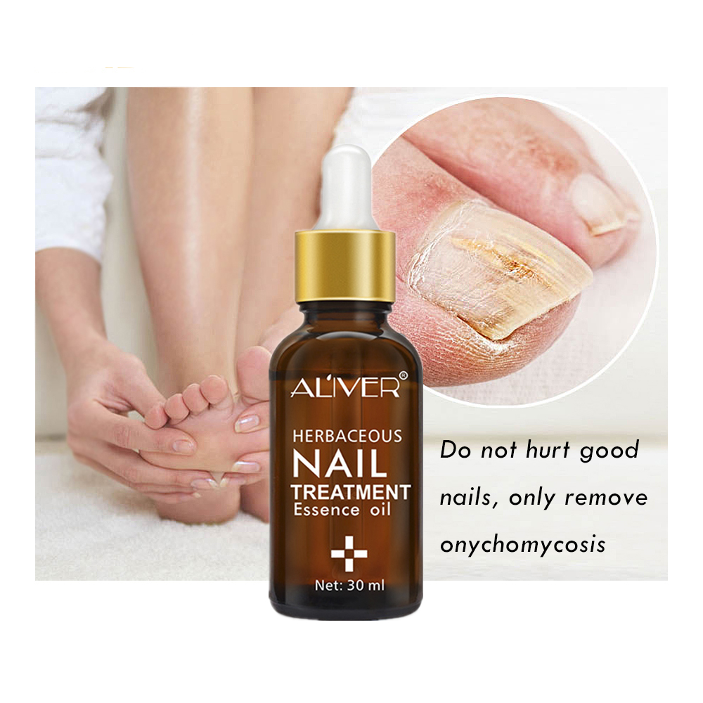 Nail Cream: Nail Protector Skin Care Cream Nail Fungus Treatment Herb