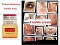 Poderoso Freckle remoção-Diluir Melanina Remover Manchas de Queimadura Solar Hidratante 20g China Tradicional Beleza Clareamento Creme
