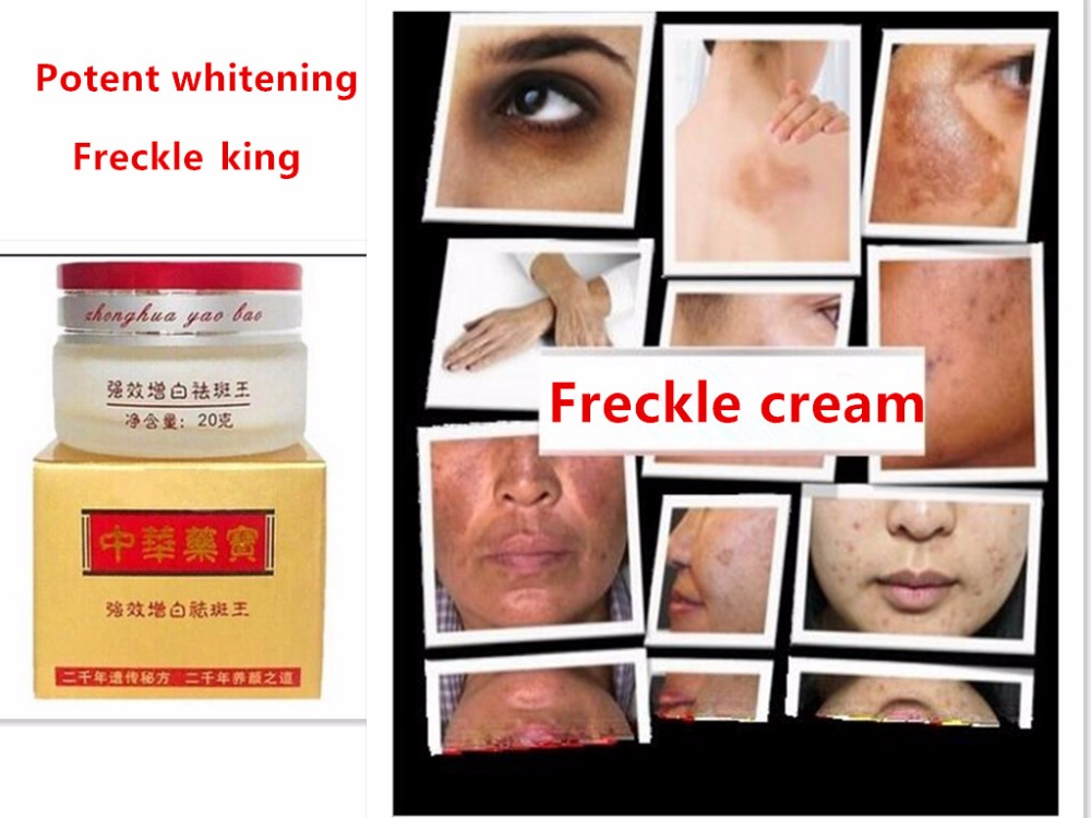 Powerful Freckle Removal Cream Whitening Face Cream Dilute Melanin Remove Stains Sunburn Eliminate Melanin Face Care