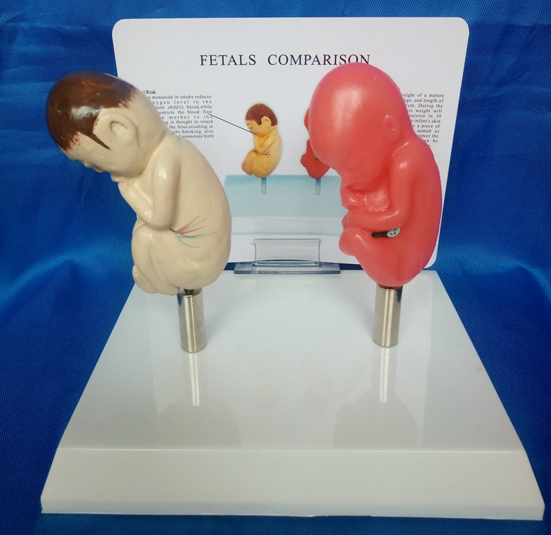 1:1 Life Size Fetal Model Compare The Smoking Fetus and Normal Fetus Body Model Medical Teaching Model with English Manual