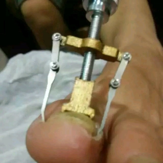 Luxury Toe Nail Care Tools Image Collection - Nail Art Design Ideas ...