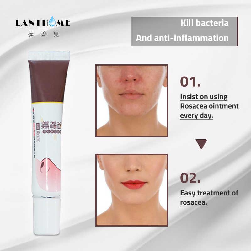Herbal Rosacea Cream Red Nose Blackhead Remover Anti Nose Mites Remove Acne Treatment Cream Deep Clean Shrink Pores Skin Care Aliexpress