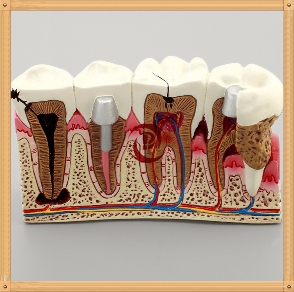 Dentistry Education Model/doctor-patient communication teeth model/Anatomy of the dental caries teeth model caries tooth model dentist patient communication anatomy model dentistry rich details teaching aids equipment