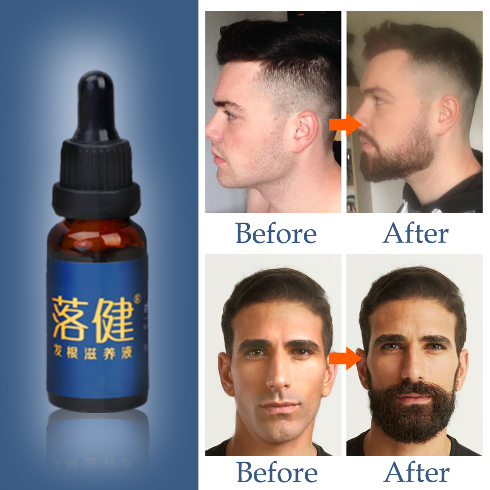 Image 4 - Beard Oil Hair Growth Essence for Anti Hair Loss Products for Topical Treatment Serum Stimulation Fast Thick Hair Care Solutions-in Hair Loss Products from Beauty & Health