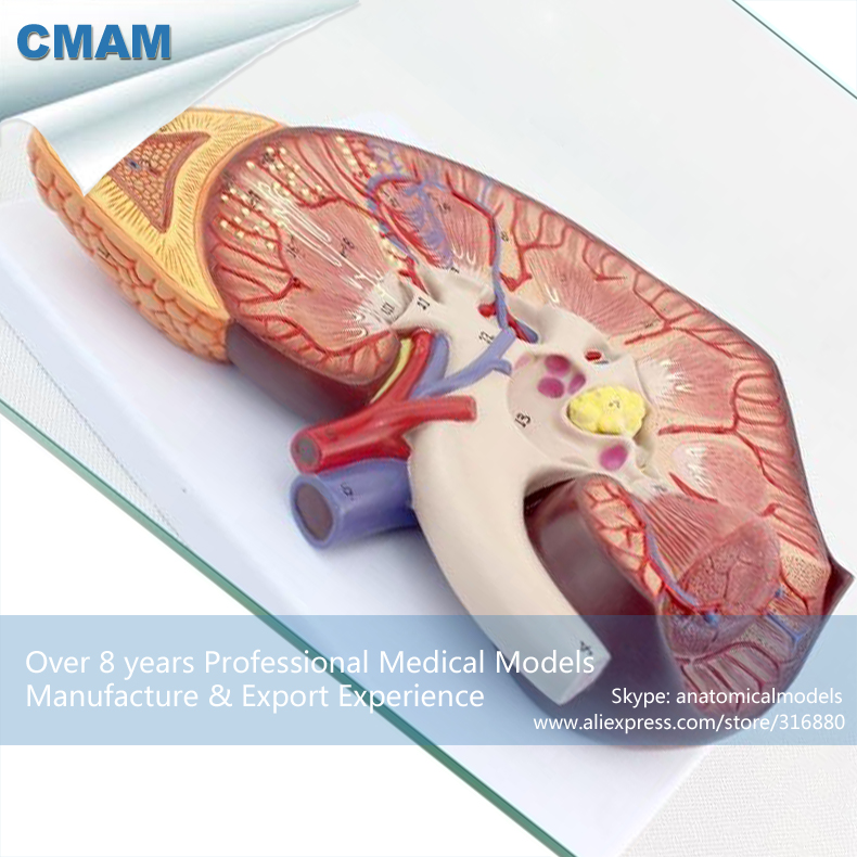 CMAM-KIDNEY02 Medical Anatomy Kidney Model on Stand 3x Life Size,  Medical Science Educational Teaching Anatomical Models cmam a29 clinical anatomy model of cat medical science educational teaching anatomical models
