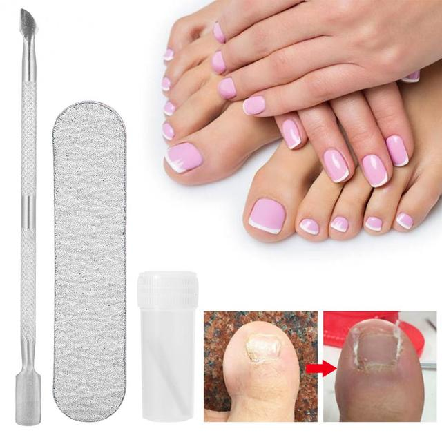 4Pcs Ingrown Toenail Correction Pedicure Tool Toe Nail Paronychia ...