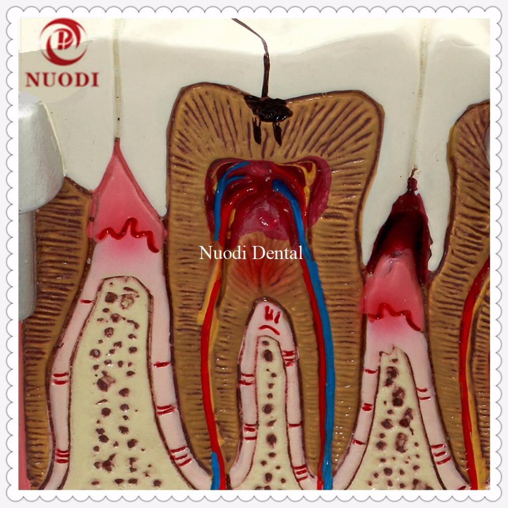 Dentistry  Disassembling Caries dental tooth Model/Dental teeth model for Doctor-patient communicationDentistry  Disassembling Caries dental tooth Model/Dental teeth model for Doctor-patient communication