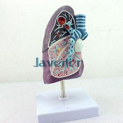 Mini Human Anatomical Lung Pathology Anatomy Medical Model Simulation human female pelvic section anatomical model medical anatomy on the base