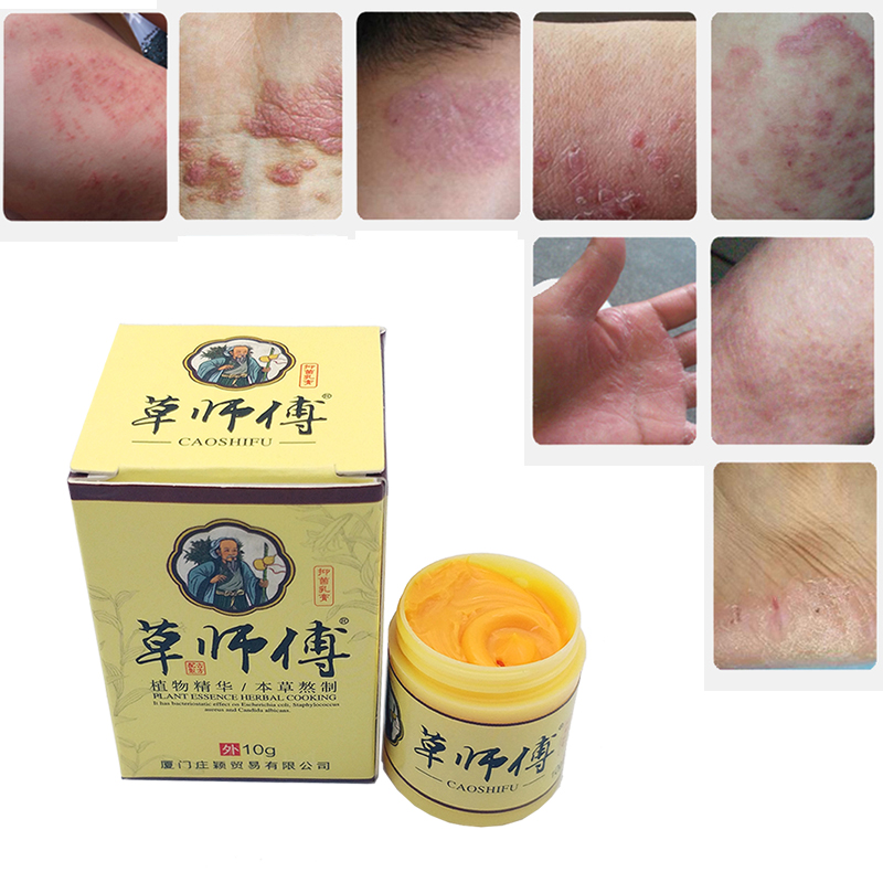 Body Psoriasis Cream Dermatitis Eczematoid Eczema Ointment Skin Psoriasis Treatment(China)