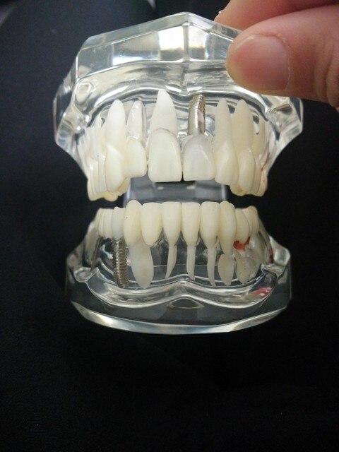 clareador Dental lab ps4 Dentist led flashlight Comprehensive pathological model of mandible Teeth Study Model