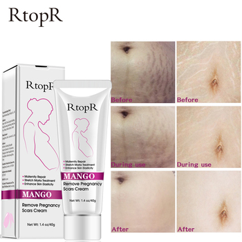 Mango Remove Pregnancy Scars Acne Cream Stretch Marks Treatment Maternity Repair Anti-Aging Anti Winkles Firming Body Creams 1