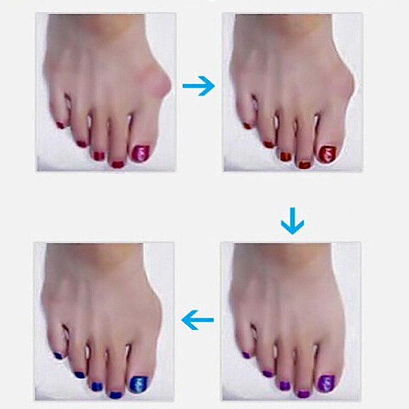 """""""Hallux Valgus Orthotics"""" """"Big Toe Corrector"""" pėdų skausmo - Įrankių odos priežiūros - Nuotrauka 6"""