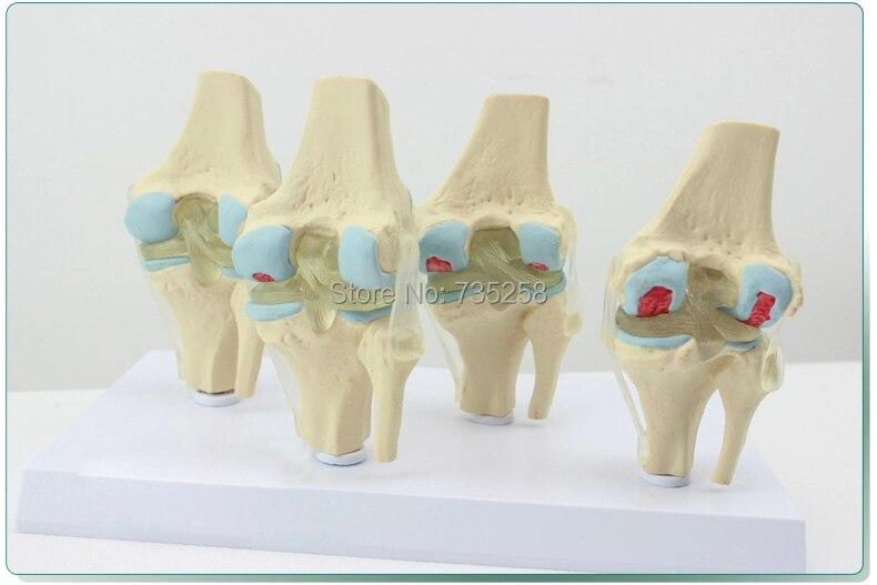 Human Knee Degenerative Diseases Presentation Model,Knee Joint Pathology Model
