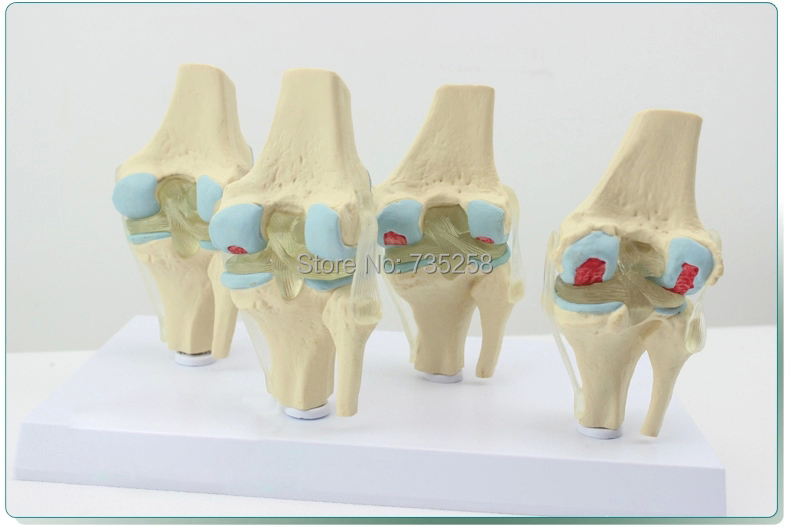Human Knee Degenerative Diseases Presentation Model,Knee Joint Pathology ModelHuman Knee Degenerative Diseases Presentation Model,Knee Joint Pathology Model