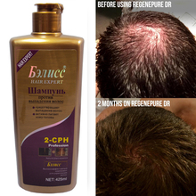 Anti-off Hair Growth Natural Herbal Chinese Anti Dandruff Shampoo 420g Free Shipping