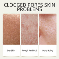 Matcha Mud Facial Mask Cream Whitening Anti-Aging Blackhead Remover Acne Treatment Deep Cleaning Oil-Control Moisturizing 3