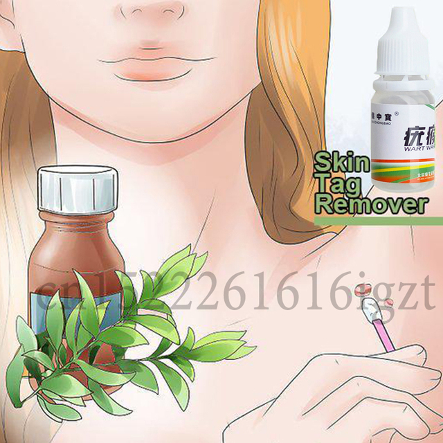 Skin Tag Mole Wart Remover Eye Skin Tag Remover 12 Hours Remover 10ml 1