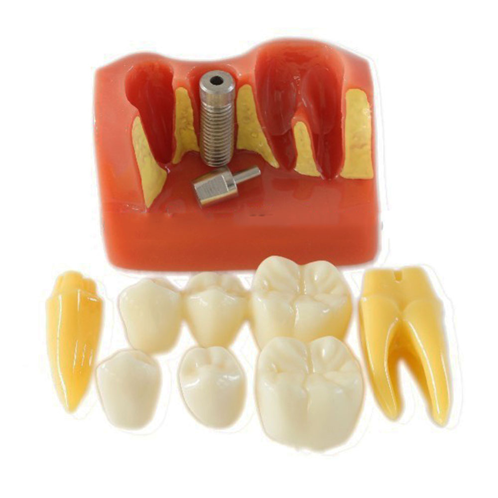 2016 New 4 Times Dental Teeth Implant Model for Doctor-Patient Demonstration of Implantment and  Porcelain Bridge Restoration krati jain pooja arora and yashpal singh dental implant biomaterials