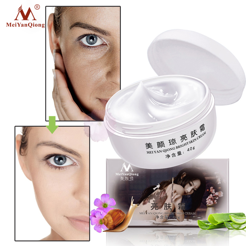 MeiYanQiong Strong Effects Powerful Whitening Freckle Cream Remove Melasma Acne Spots Pigment Melanin Skin Care Lightening TSLM2